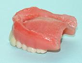レジン床総義歯